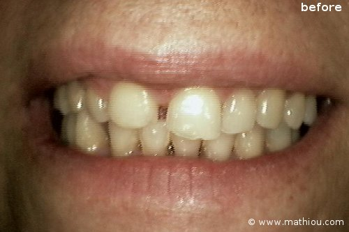 Cosmetic Dentistry - Before vs After