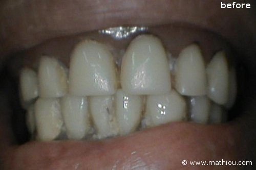 Dental Implant(s) - Before vs After